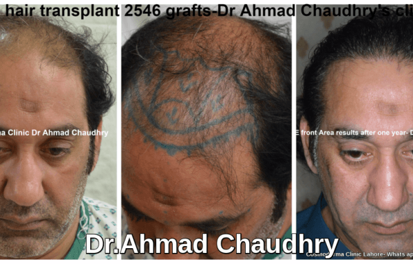 Best-hair-transplant-clinic-Lahore
