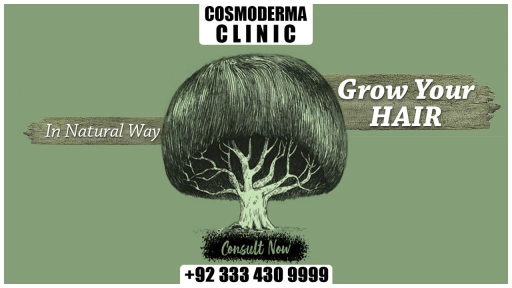 Cosmoderma hair transplant clinic Prices cost in Lahore