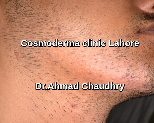 Facial scar surgery in Lahore Pakistan