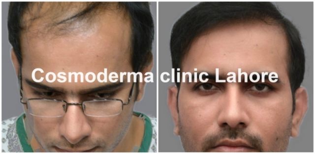 Front-hairline-clinic-lahore-Pakista