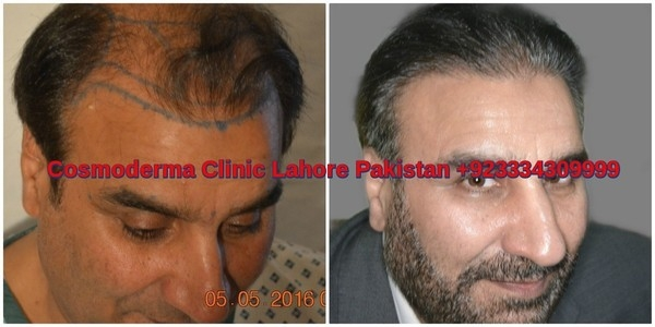 Fue-hair-transplant-clinic-lahore-results-3000-grafts
