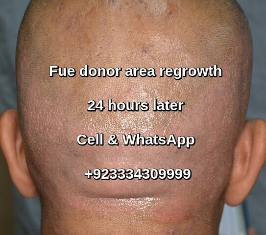 Hair transplant donor area regrowth