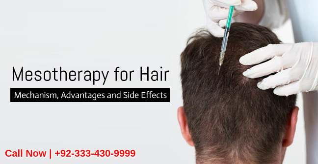 Mesotherapy hair loss treatment clinic Lahore Pakistan