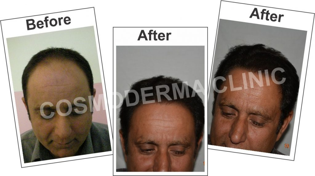 cheap-hair-transplant-in-Lahore