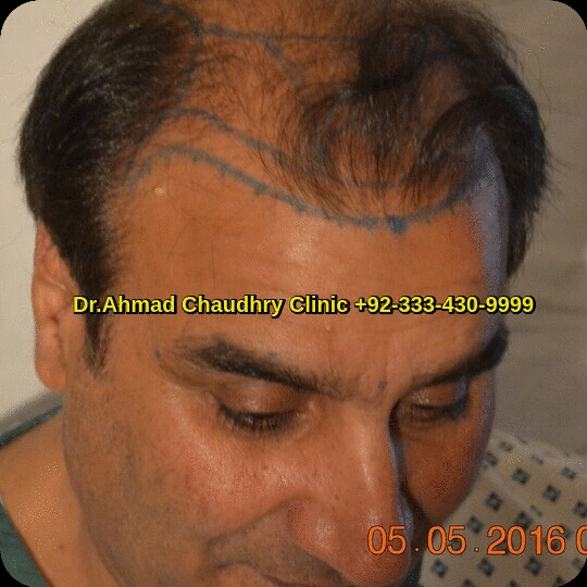 hair transplant before procedure photos