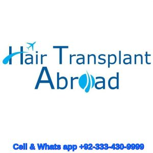 hair transplant in Nairobi Kenya