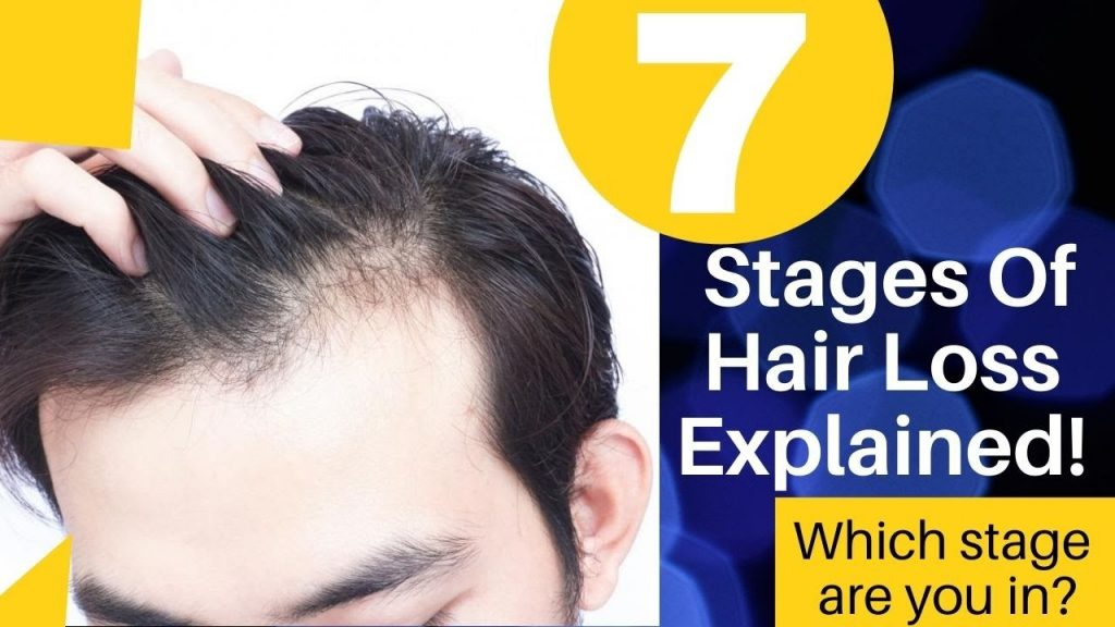 Baldness seven stages