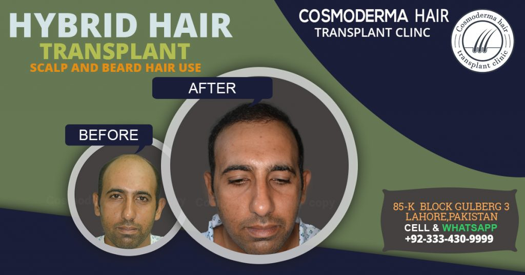 Beard body hair for head hair transplant in Lahore
