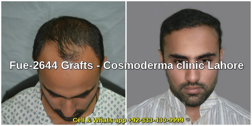 Fue 2644 grafts hair transplant results 6 months later results Lahore
