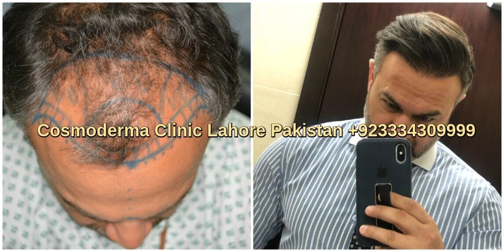 Fue hair restoration Doha patient