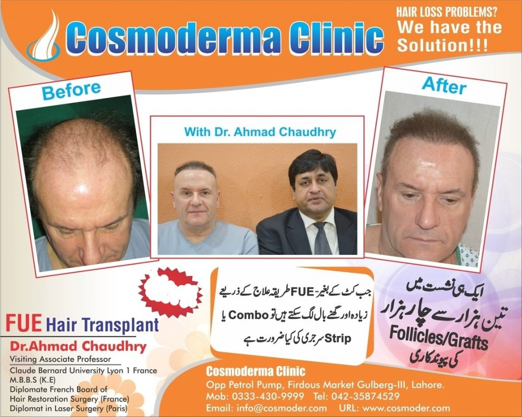 Hair transplant clinic Lahore