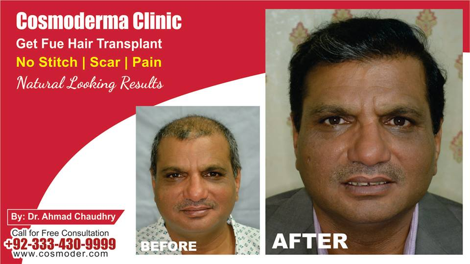 Hair transplant surgery clinic in Lahore Pakistan