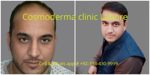 Why follicular unit extraction hair transplant