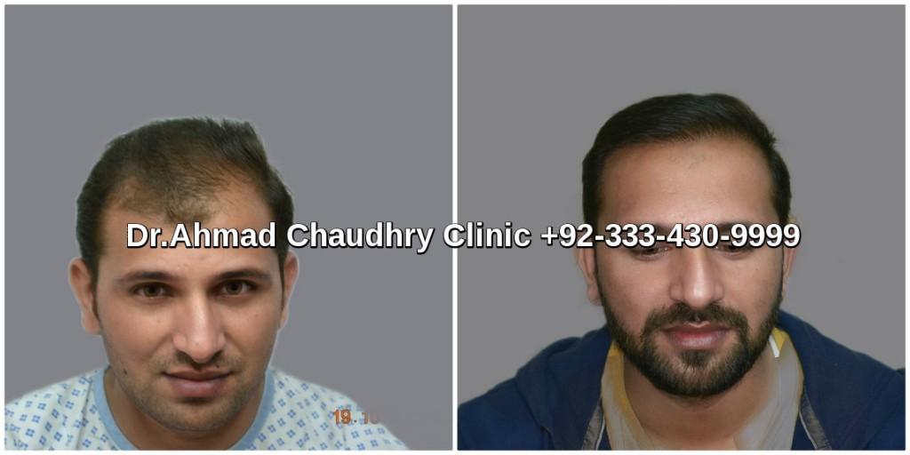 Fue hair transplant in Lahore 3000 grafts result