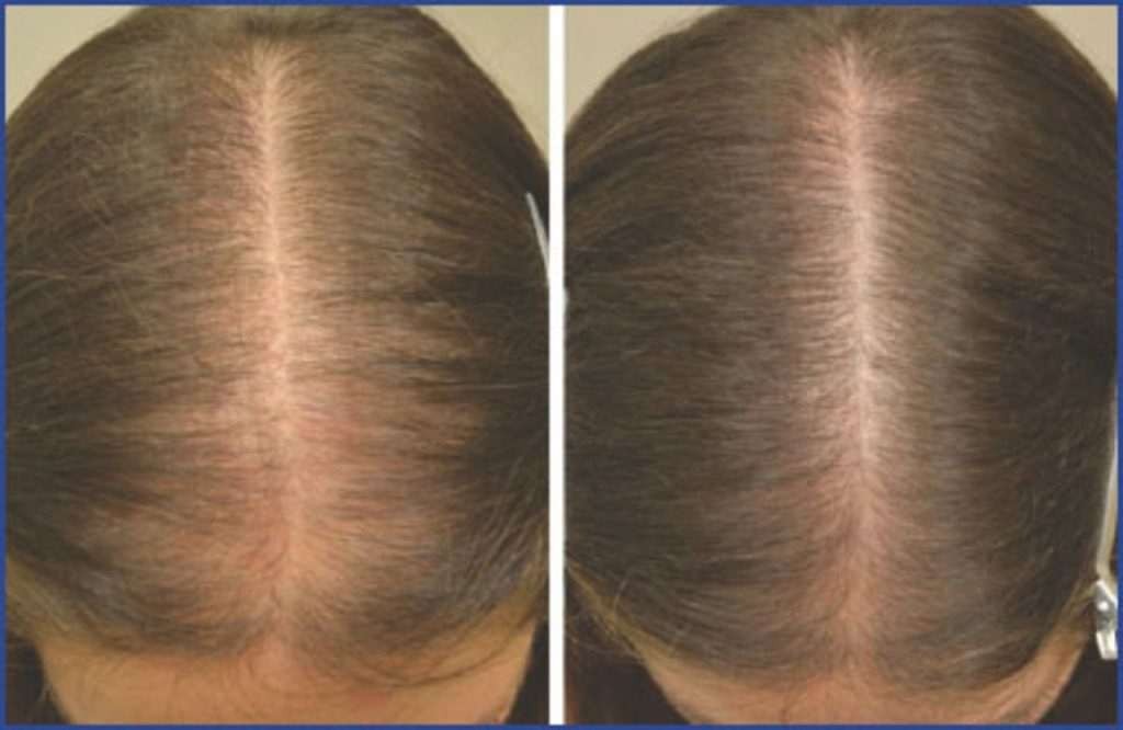 Female pattern baldness treatment Lahore