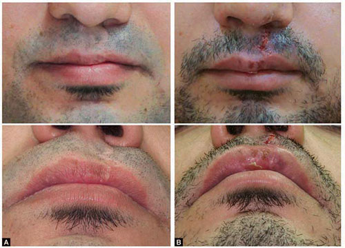 Before and after cleft lip scar revision Lahore